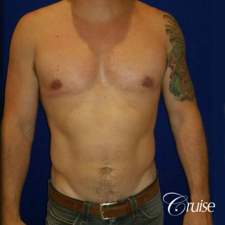 Moderate Gynecomastia -Areola Incision - After Image