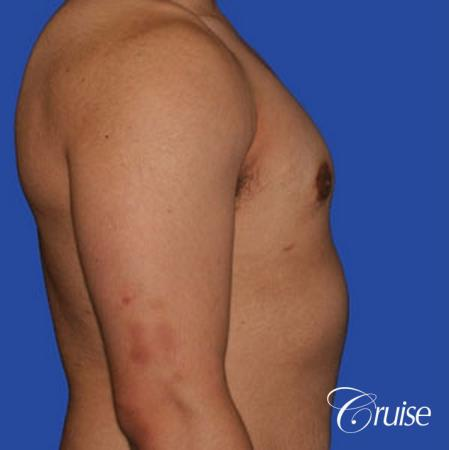 minor gyne young adult with best scars -  After Image 3