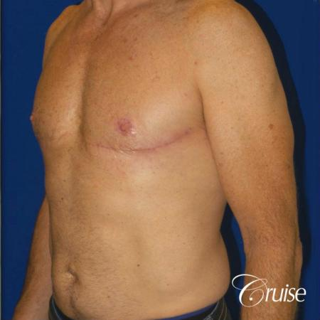 Top Gynecomastia surgeons - After Image 2