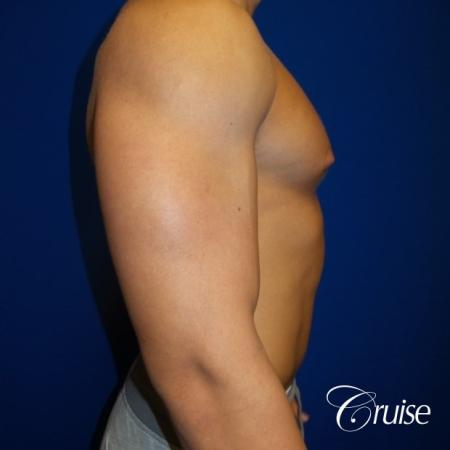 bodybuilder with gynecomastia - Before 2