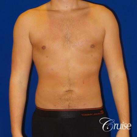 Best  before and after lipo photos of guys - After