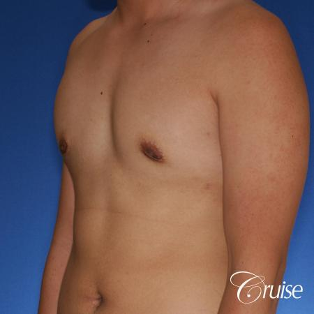 best gynecomastia surgery with plastic surgeon, Dr. Cruise -  After Image 3