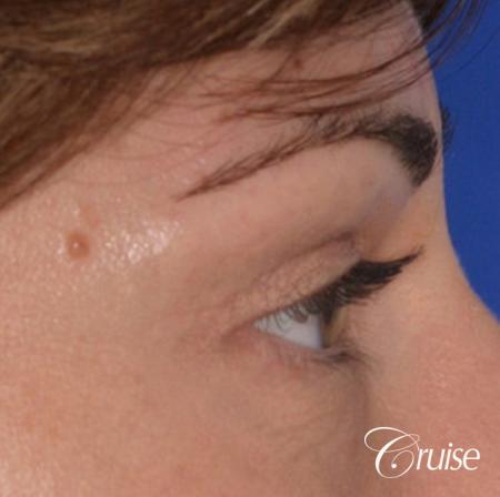best soft tissue filler using Juvaderm -  After Image 2