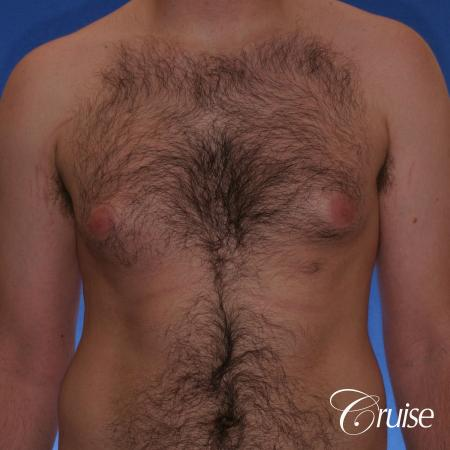 best Puffy nipple correction and gynecomastia on young adult - Before Image 1