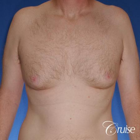 best donut lift with gynecomastia surgery - Before Image 1