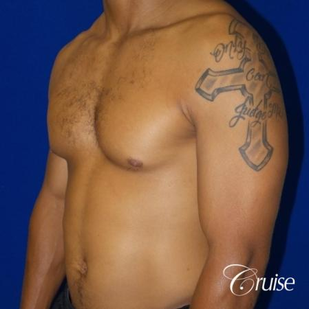 gynecomastia caused by testosterone - Before and After Image 3