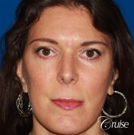 Fat Transfer - Forehead, Temple, Tear Trough, Lower Lids, Cheeks - After Image