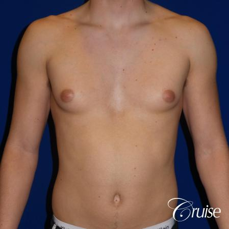 Best moderate gynecomastia on male adult - Before Image 1