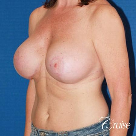 best breast reduction surgery with saline implants -  After 2