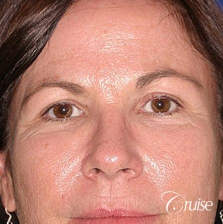 best plastic surgery on upper eyelids - Before Image