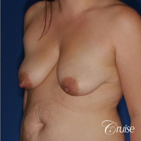 best results on young woman for breast lift anchor with saline augmentation - Before Image 3