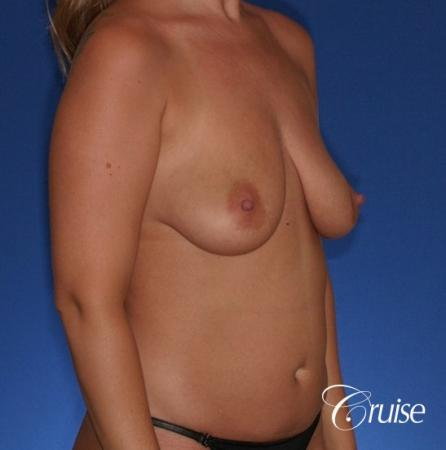 best before and after of breast lift anchor with high profile saline augmentation - Before Image 4