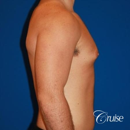 athletic adult with puffy nipple - Before Image 4