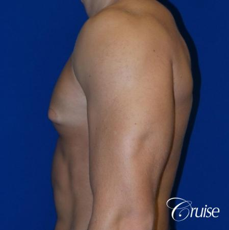 Mild Gynecomastia -Areola Incision - Before and After Image 3