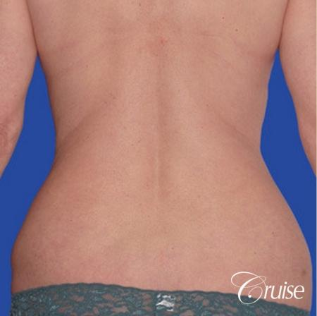 low mini tummy tuck with D cup  breast augmentation - Before Image 3