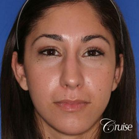 anatomic chin implant with top plastic surgeon in Newport Beach -  After Image 1