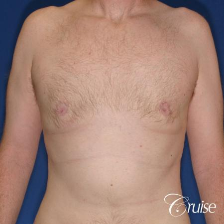 best donut lift with gynecomastia surgery -  After Image 1