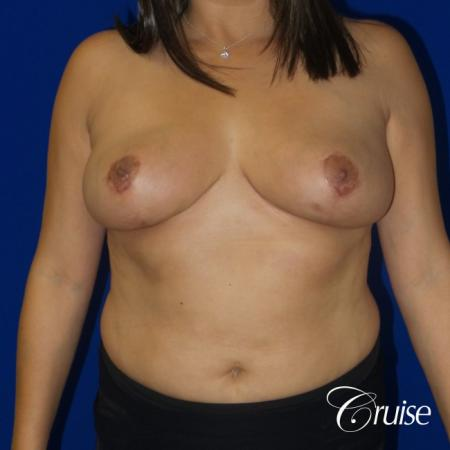 Breast reduction surgery with no implants added - After Image