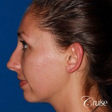 best adult otoplasty on women - Before and After Image 3