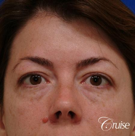 Blepharoplasty - Upper and Lower - Before Image
