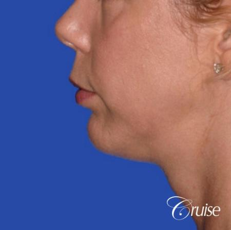 best medium anatomic chin implant on female -  After Image 2