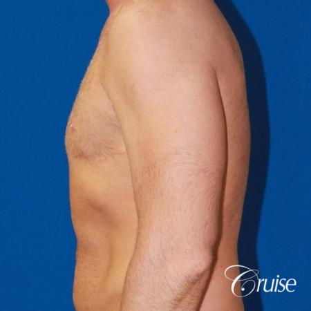 Free Nipple Graft male gynecomastia -  After Image 2