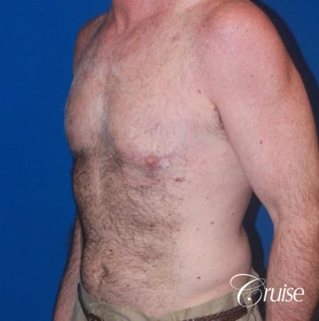 extended pa incision on gynecomastia patient -  After Image 2