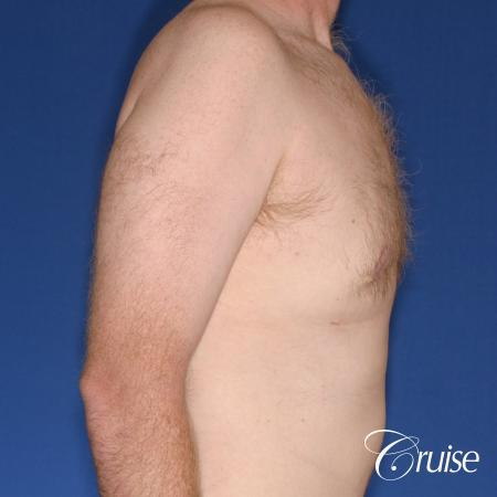 best donut lift with gynecomastia surgery -  After Image 3