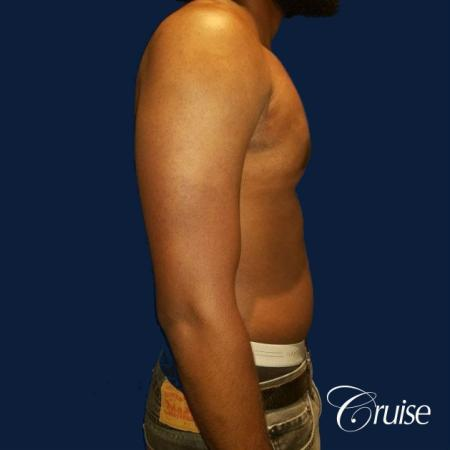 Moderate Gynecomastia -Puffy Nipple -Areola Incision - After Image 2