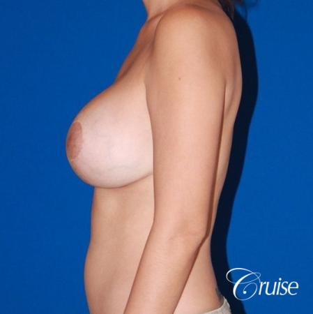 best results for breast lift anchor with saline implanta -  After Image 2