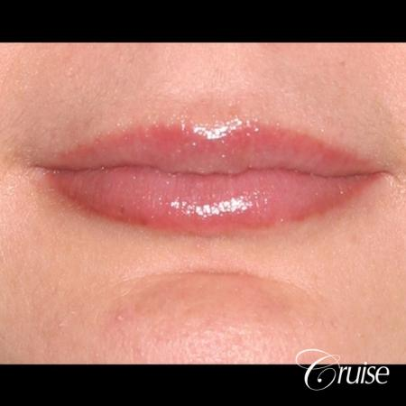 best before and after of lip filler - After Image