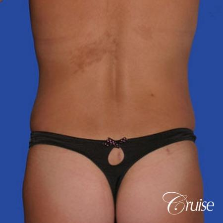 mommy makeover with best breast lift anchor with saline implants -  After Image 5