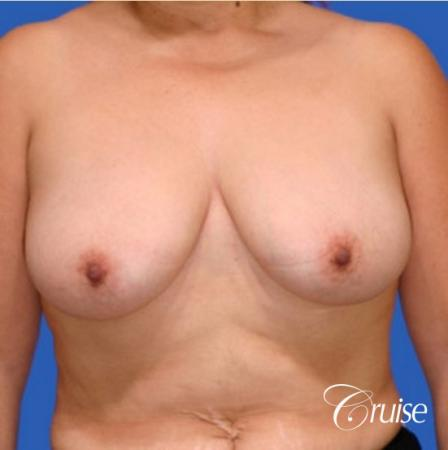 best breast lift donut results with saline augmentation - Before Image 1