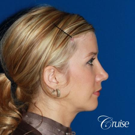 female patient with best chin implant scar -  After Image 4
