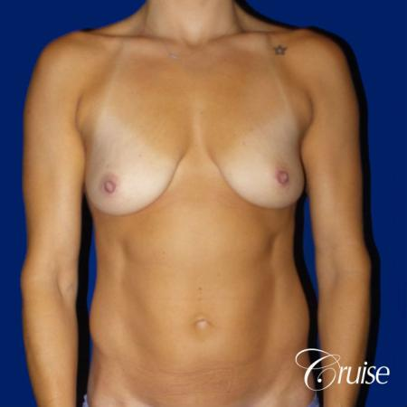 Mommy Makeover Best plastic surgeons - Before Image