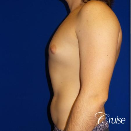 Mild Gynecomastia- Areola Incision - Before and After Image 3
