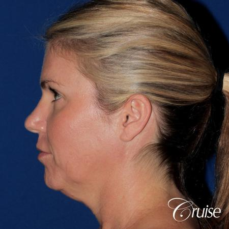 best small anatomic implant photos - Before Image 2