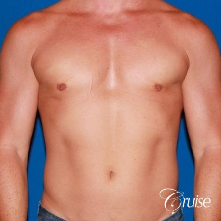 body builder with Gynecomastia puffy nipple -  After Image 1