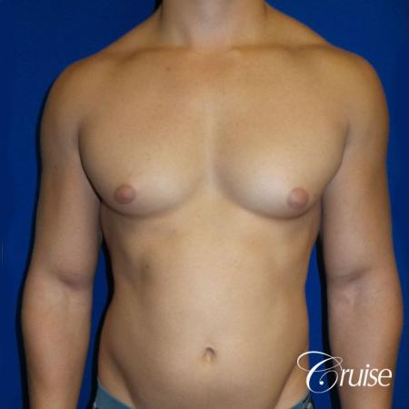 Best before and after gynecomastia pictures - Before Image 1