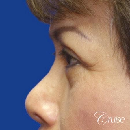 best Asian Upper eye lid plastic surgeon Newport Beach -  After Image 2