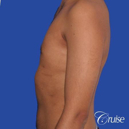 best before and after results for gynecomastia surgery -  After Image 2