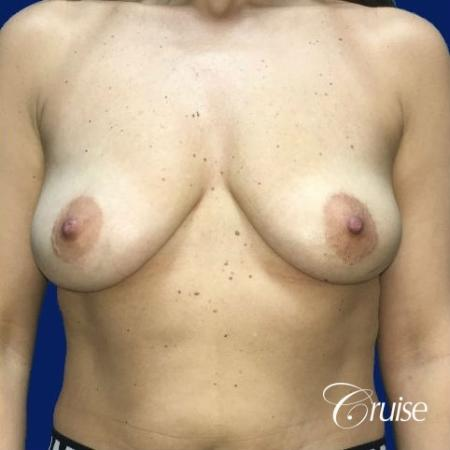 Breast Lift Anchor W/ Silicone Implants On Young Woman - Before Image 1