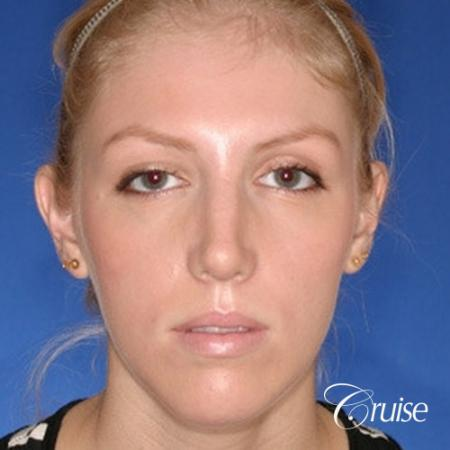 young female with large anatomic chin implant -  After Image 1