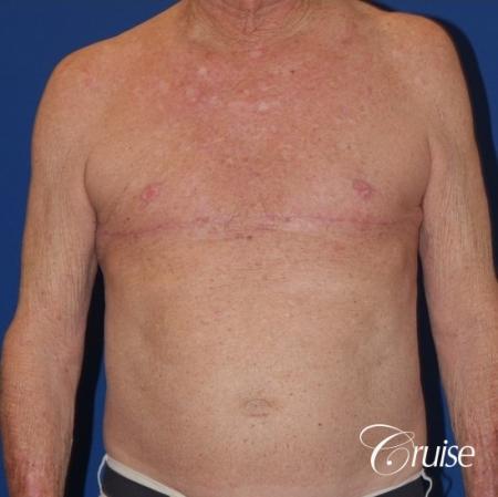 free nipple graft gynecomastia on old man - After Image 1