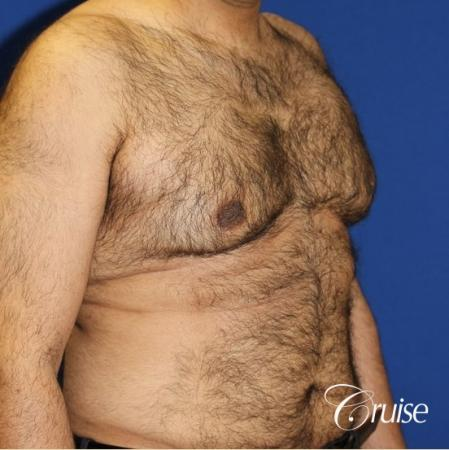 40 year old with severe gynecomastia results - Before Image 2
