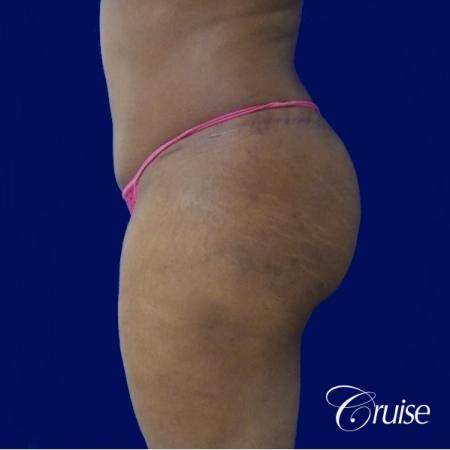 Liposuction Flanks - After Image 2