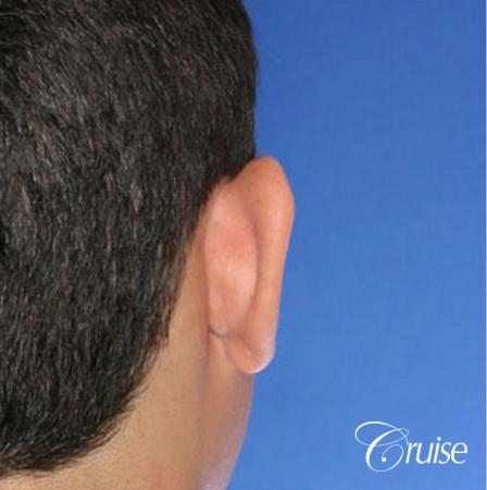 best otoplasty pictures on male teen in Newport Beach - Before Image 2
