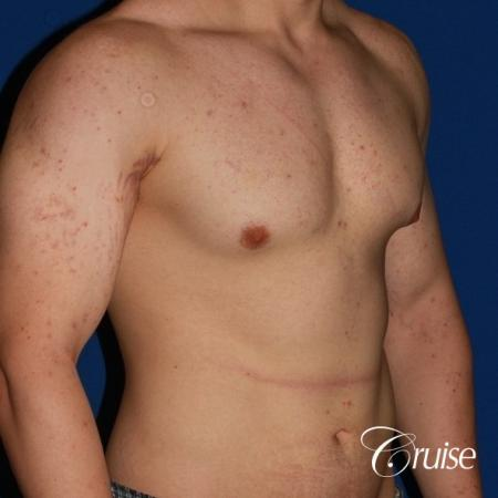 mild-gynecomastia-revision - Before Image 3