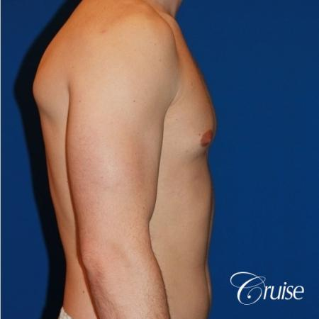 32 yo with Gynecomatia and Puffy Nipple - Before Image 4