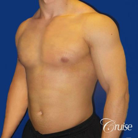Body Builder Gynecomastia -Areola Incision - After Image 2